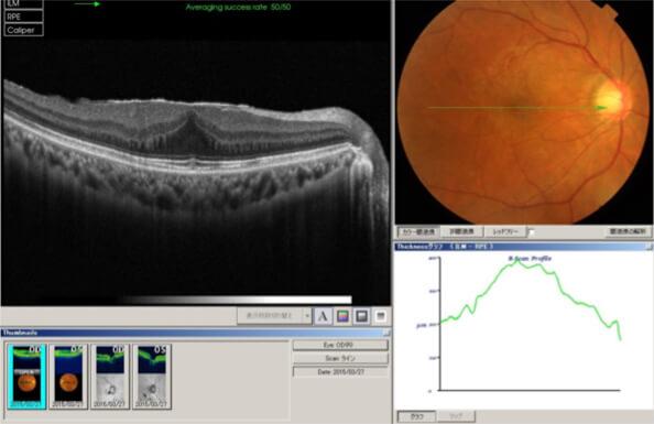 黄斑上膜(前膜)手術前