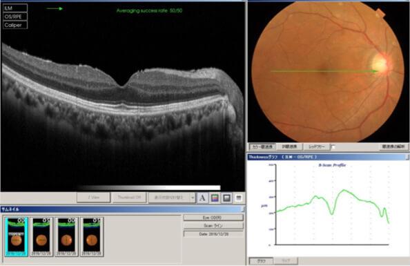 黄斑上膜(前膜)手術後