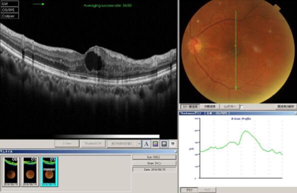 網膜静脈(分枝)閉塞症手術前