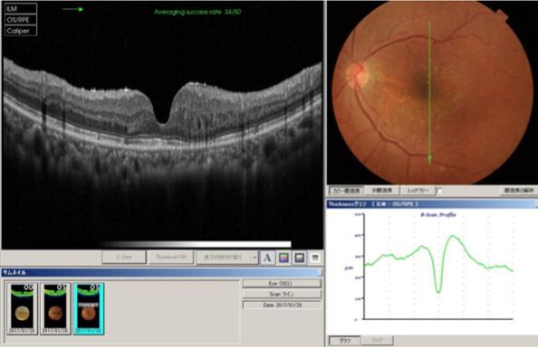 網膜静脈(分枝)閉塞症手術後