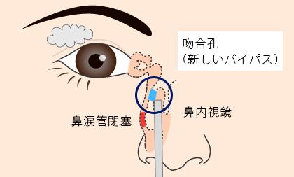 涙小管閉塞部を開放する最新の手技